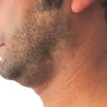 eliminare il doppio mento con la chirurgia estetica